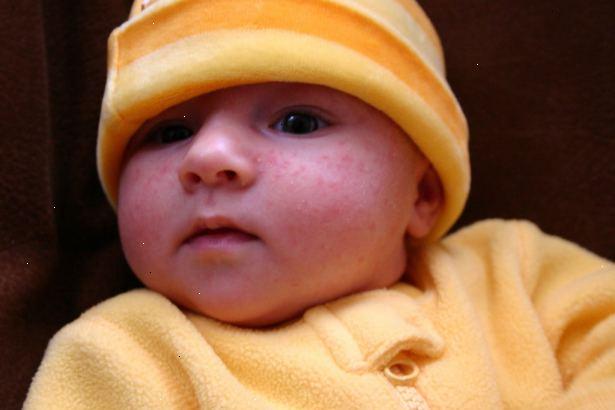 baby acne wat te doen